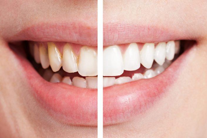 manchas dentales