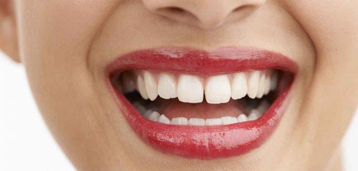 diastemas y dientes separados