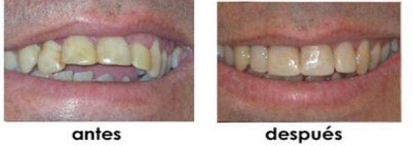 agrandar dientes
