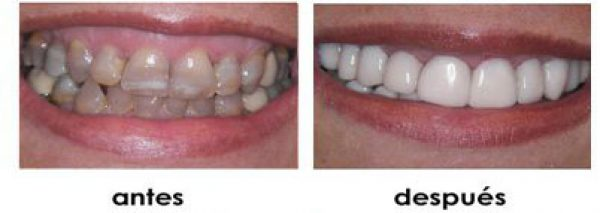anodoncia dental