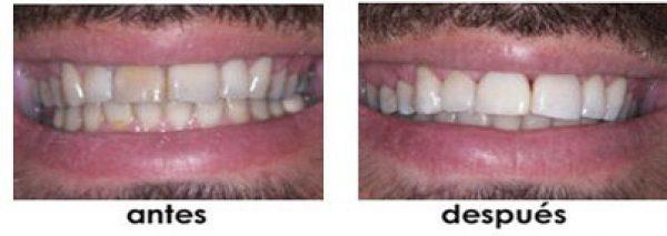arreglo dientes separados