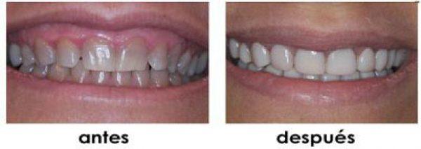 ausencia dental