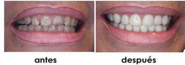 ausencia dientes