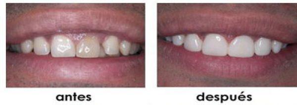brakets dientes