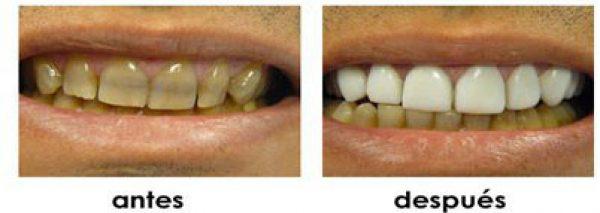 carencia dientes