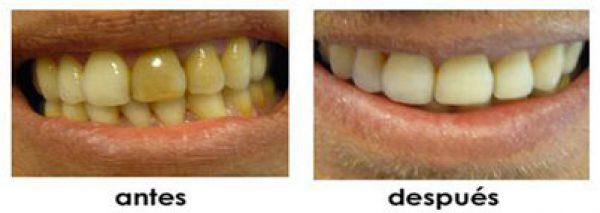 cerrar diastemas ortodoncia