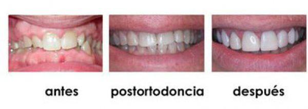 composite dientes