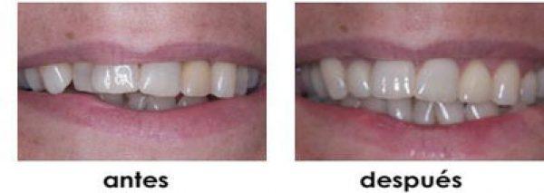 cuidado dientes