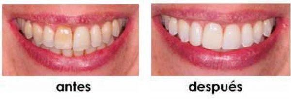 dientes oscuros antes despues