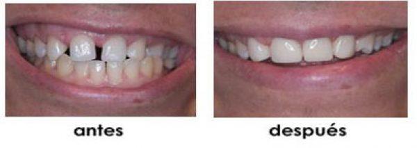 huecos dientes