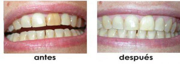 juntar dientes separados