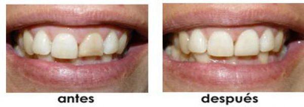 laminas dientes