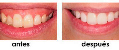 posicionamiento-de-labios-madrid
