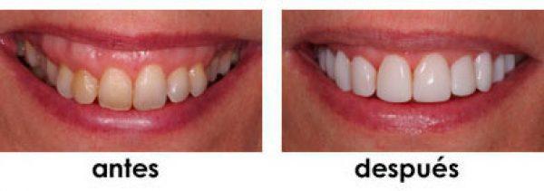 posicionamiento y rejuvenecimiento dental