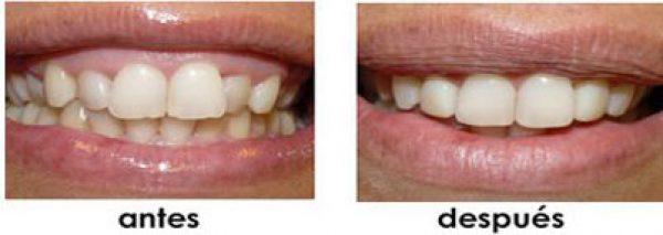 que es ortodoncia