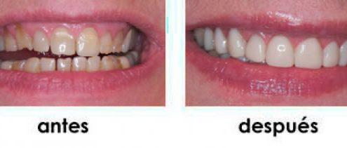 rejuvenecimiento-dental-carillas-composite