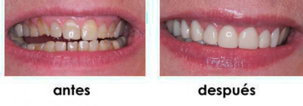 rrejuvenecimiento dental con carillas