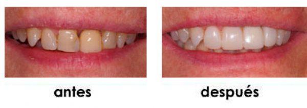 clinica de rejuvenecimiento dental