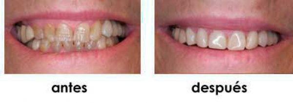 rejuvenecimiento dental madrid