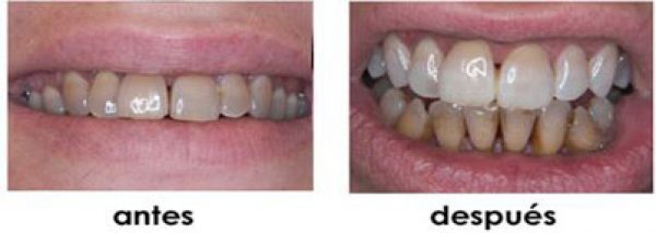 tincion dental