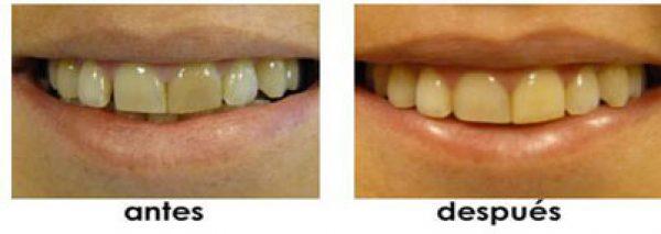tratamiento dientes separados