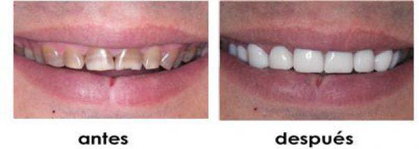 tratamiento hipodoncia
