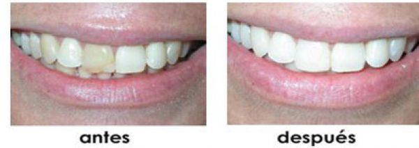 unir dientes separados