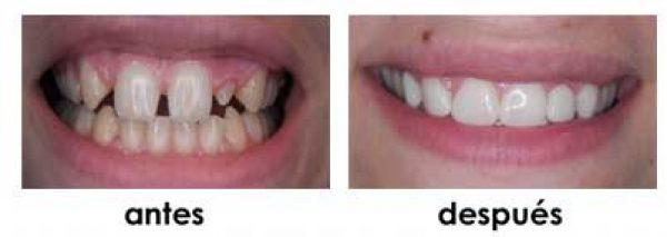 agenesias diastemas composite