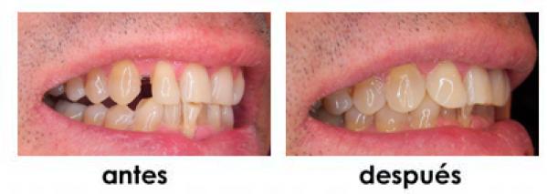 diastemas composite