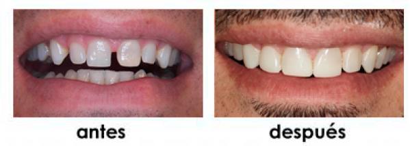 diastemas composite madrid