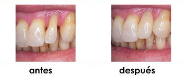 diastemas dientes separados