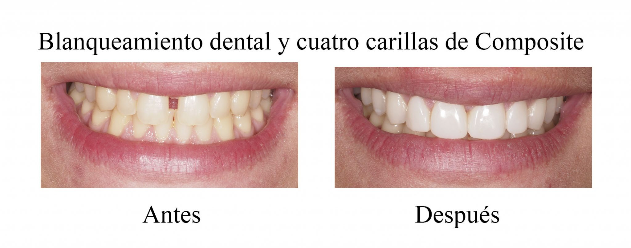 carillas dentales de composite
