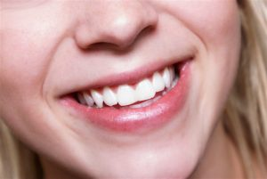 tetraciclina dientes