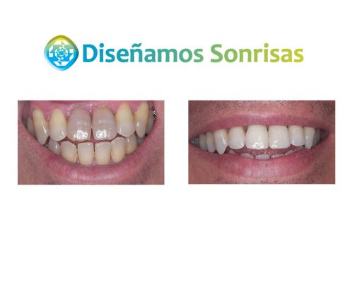 tratamiento diente oscuro
