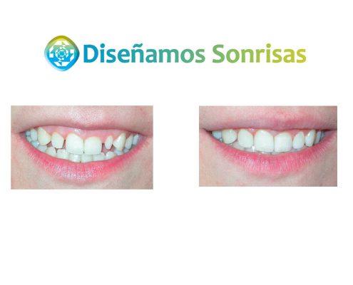 tratamiento agenesia dental madrid