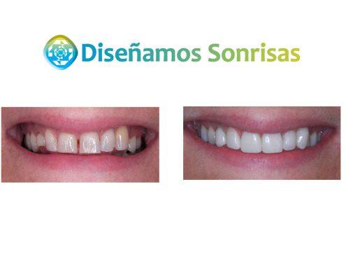 tratamiento de la agenesia dental
