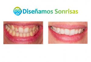 blanqueamiento dental y carillas de composite