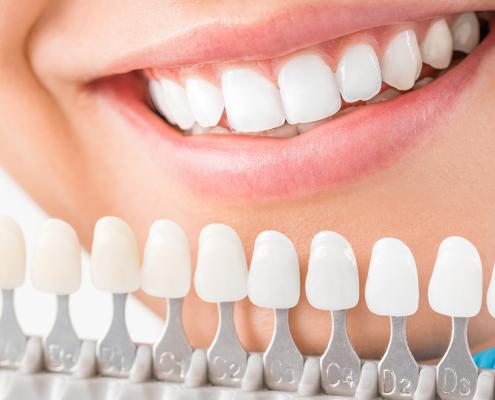 blanqueamiento dental más carillas