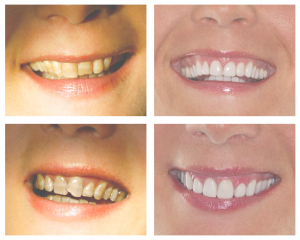 tinción dental por tetraciclinas